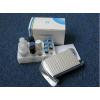 人缺血修饰白蛋白(IMA)ELISA 试剂盒
