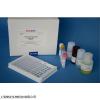 48T/96T 人抗高尔基体抗体(AGAA)ELISA试剂盒实验步骤