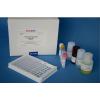 48T/96T 人尿激酶(UK)ELISA试剂盒说明书
