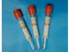 48T/96t 人多肽YY(Peptide-YY)ELISA试剂盒
