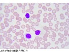 CA46 人Burkitt's淋巴瘤细胞CA46高校科研