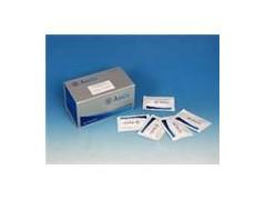 MIP-1α试剂盒厂家,兔子巨噬细胞炎性蛋白1α