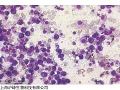EA.hy926 人脐静脉细胞融合细胞高校合作