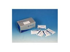 ACAC试剂盒厂家,鸡乙酰乙酸检测