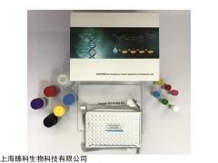 人凝血因子抑制物VIIIelisa试剂盒