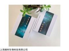 大鼠血清素/血清胺(ST)elisa试剂盒