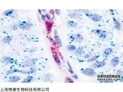 MX3201 Hoechst细胞凋亡双染试剂盒