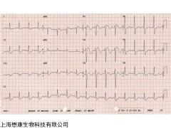 MZ3653  (ECG) (-)-表儿茶素没食子酸酯