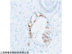MP6104 BSA,Protease Free